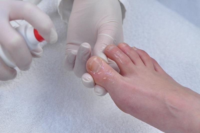 Врач брызгает пораженную грибком ногу спреем