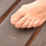Онихомикоз (грибок ногтей) — о заболевании