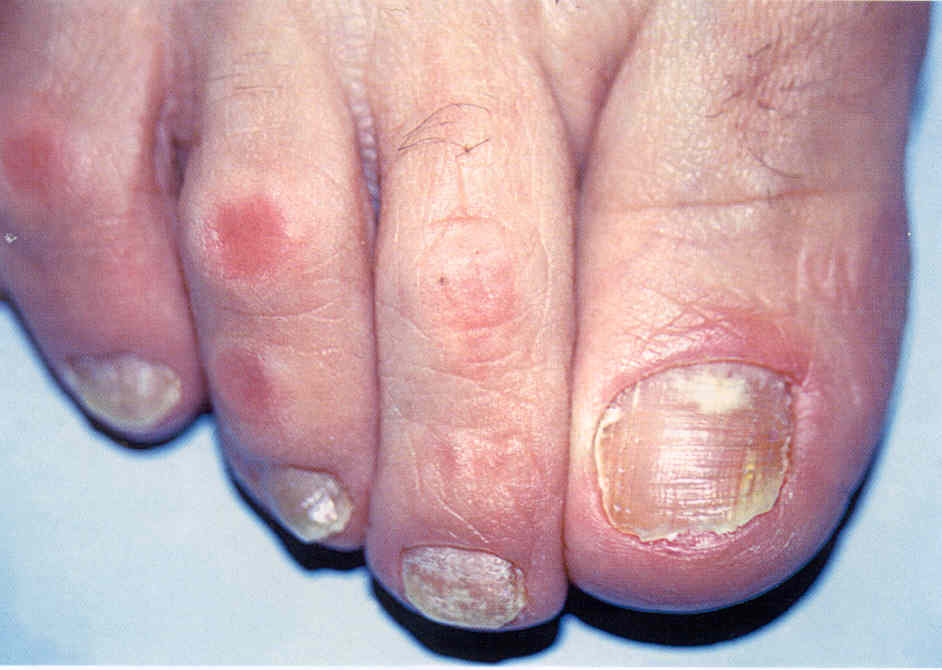 Как уксусом лечить грибок ногтей на ногах