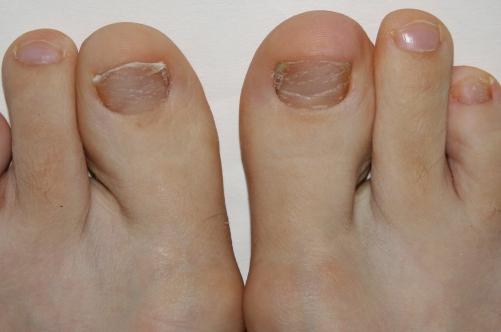 вторая степень развития грибка ногтей