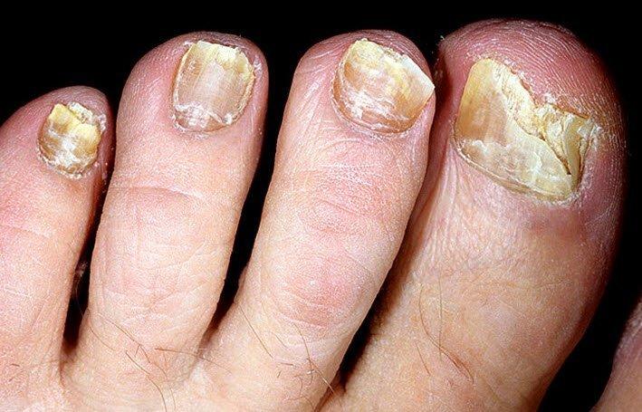 Поражени ногтевой пластины грибком