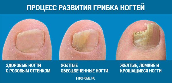 Лекарственные препараты против грибка стоп