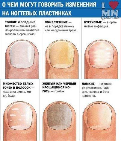Рецепт от грибка ногтей