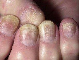 Лечение грибка ногтей в домашних условиях самостоятельно