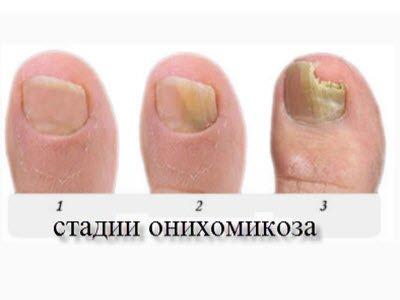 стадии грибка ногтей