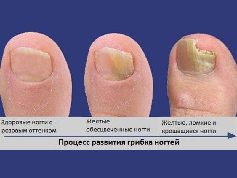 Грибок ногтей: симптомы на фото