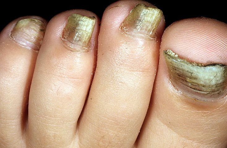 грибковое поражение ногтей: гипертрофический грибок