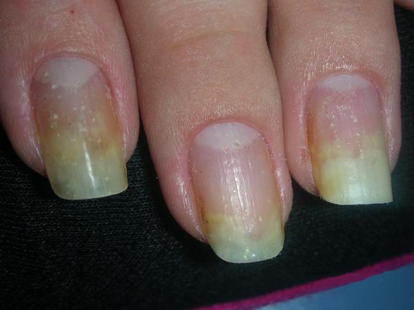 Лечение синдром желтого ногтя