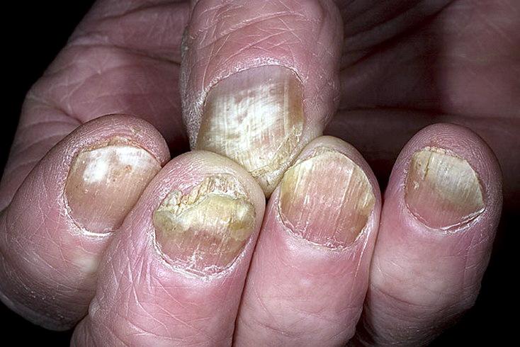 ногти пораженные грибком