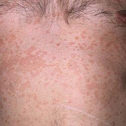 Грибок кожи на теле человека: фото, лечение мазями