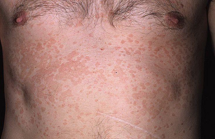 грибок на теле (фото)