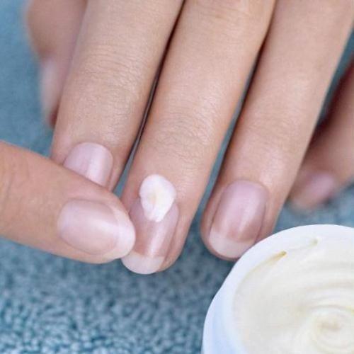 грибок на пальце руки