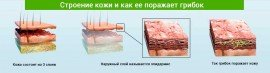 Лечение грибка стопы: недорогие но эффективные препараты