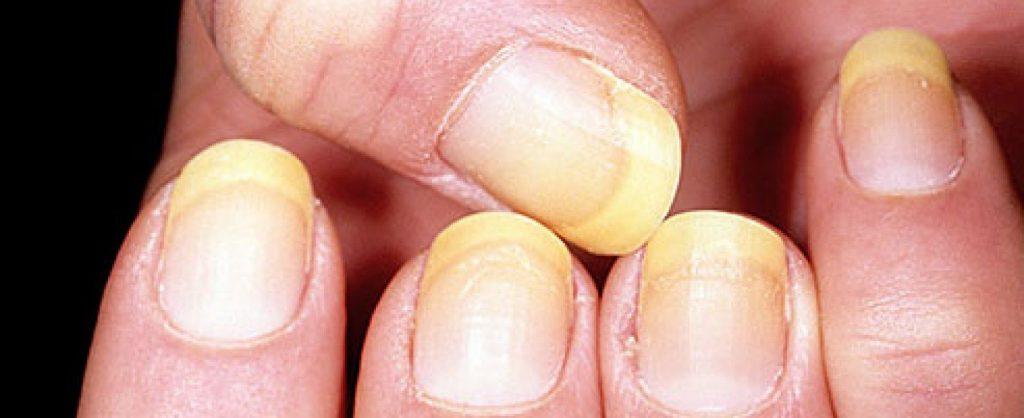 начало грибка ногтей