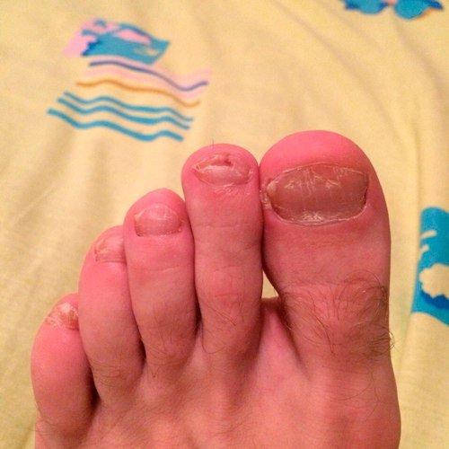 Слоятся и ломаются ногти на руках причина и лечение