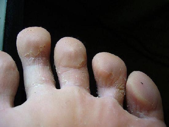 Запущенный грибок ноги