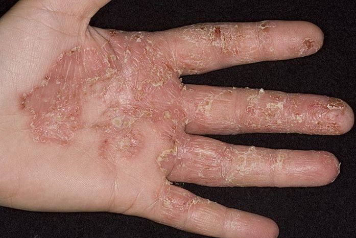 Какие лекарства помогают при грибке ногтей