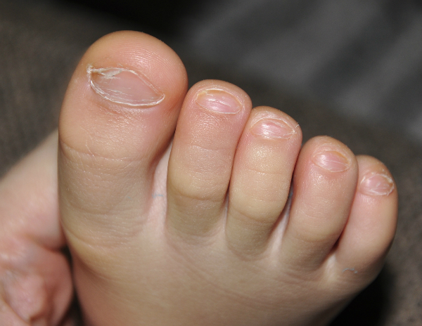 грибок ногтей у ребенка