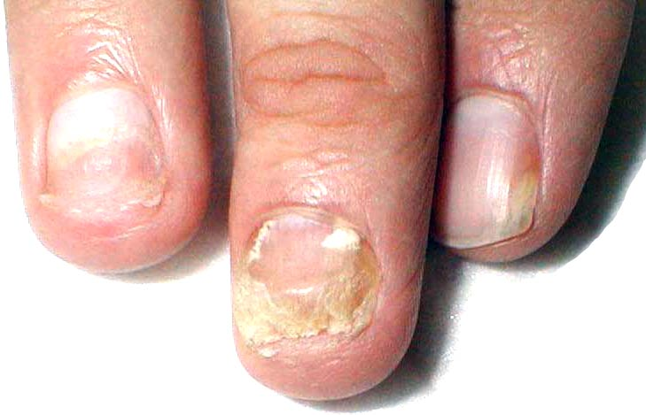 Против грибка ногтей офломил цена