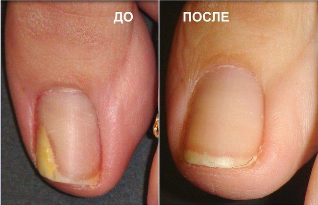 результат лечения грибка ногтей перекисью