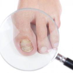 Лечение грибка ногтей содой: отзывы о содовых ванночках