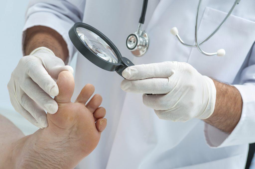 осмотр ног врачом