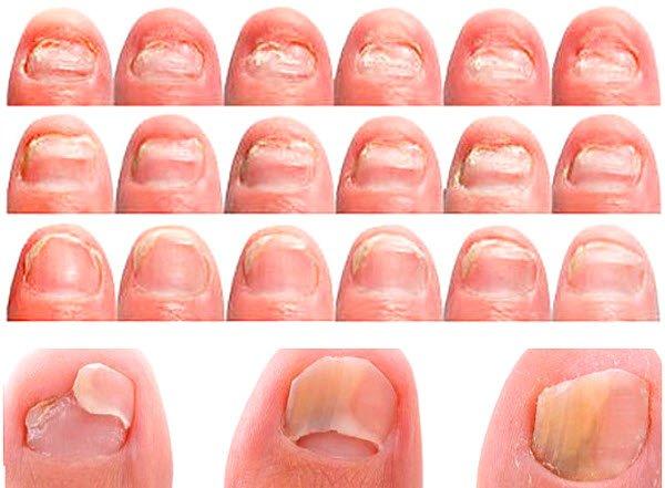 Тетрациклиновые зубы у детей фото