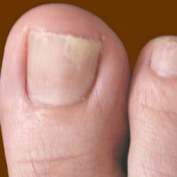 Snazii от грибка ногтей: инструкция, цена и отзывы