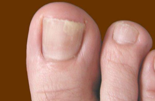 Грибки ног и ногтей фото