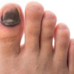 Чернеет ноготь на большом пальце ноги: что делать и как лечить