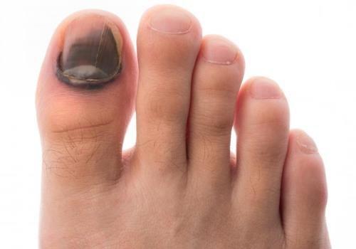 Почернело под ногтем большого пальца ноги