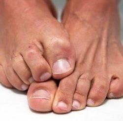 Средства от грибка ногтей на ногах: эффективные антимикотические препараты