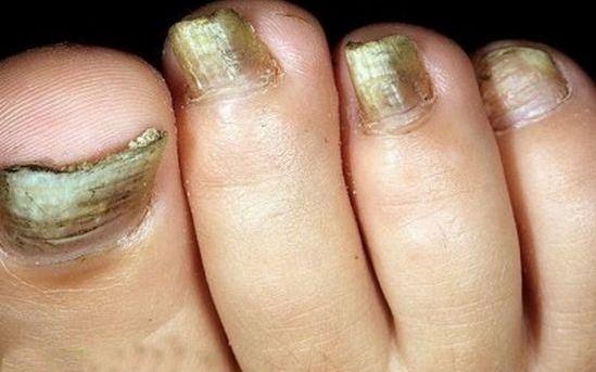 Грибковое поражение ногтей - черный ноготь