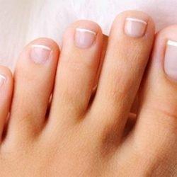 Желтые ногти на ногах: причины, лечение, ФОТО до и после