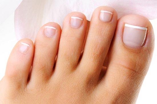 Почему желтеют ногти на ногах и какие могут быть причины болезни