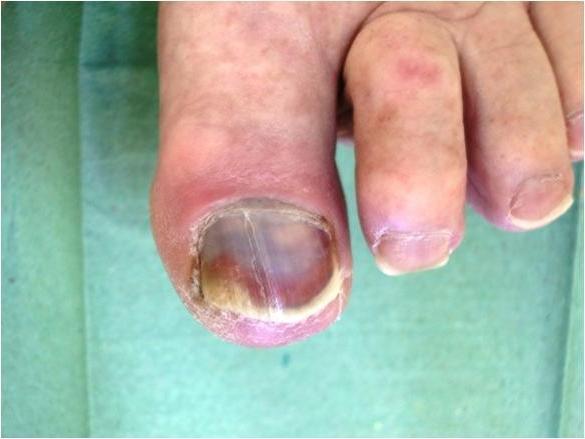 Потемнение ногтя, связанные с сахарным диабетом.
