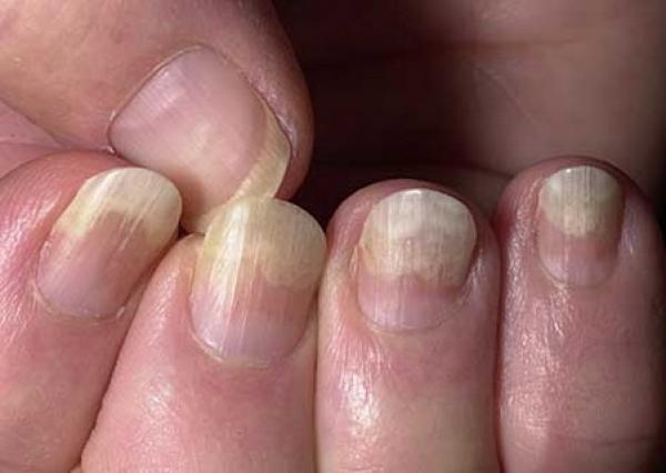 омертвевшие ногти