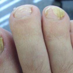 Грибок под ногтем на ноге: лечение пустот под ногтями, снятие боли.