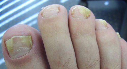 Ногти на ногах пожелтели и внутри пустота