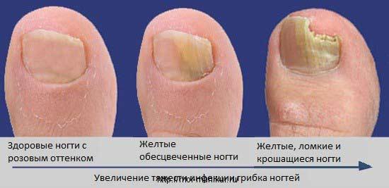 Snazii от грибка ногтей инструкция по применению - фото 5