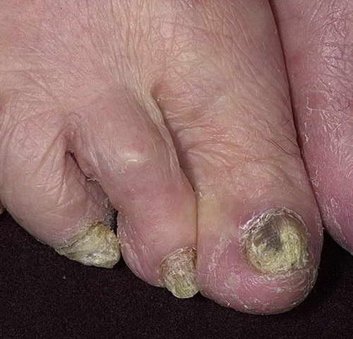 Очень сильное поражений ногтей грибком