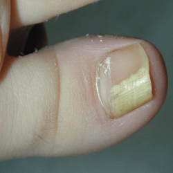 Медицинский педикюр при грибке ногтей: нужен или нет?