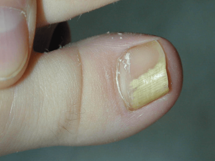 Воспаление около ногтя большого пальца ноги лечение